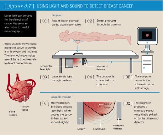 Pammografie, pijnloos borstkankeronderzoek, infografic