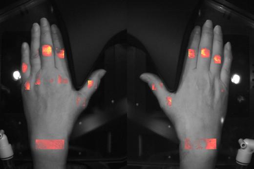 HandScan Optical Inflammation Image