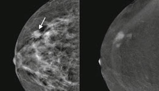 CESM-Mammogram, 520x300