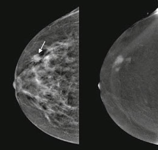 CESM, Mammogram