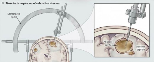 Stereotactic aspiration of subcortical abscess