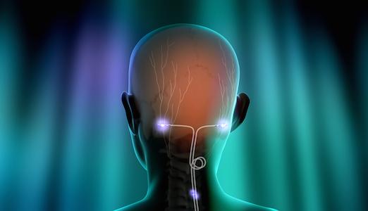 Neurostimulatie