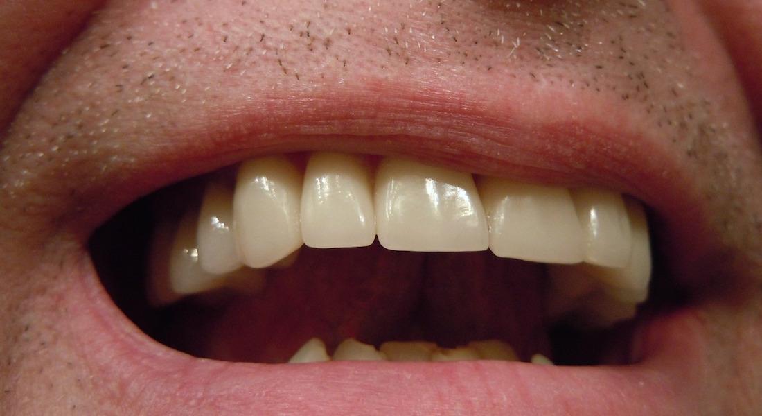 Mond tanden