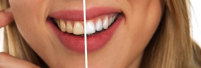 cosmetische tandheelkunde, voor en na