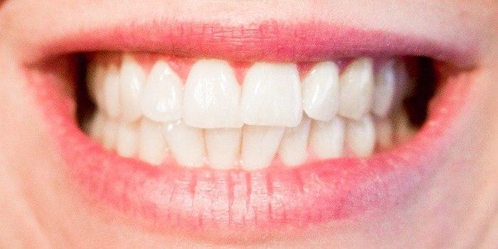cosmetische tandheelkunde, witte tanden